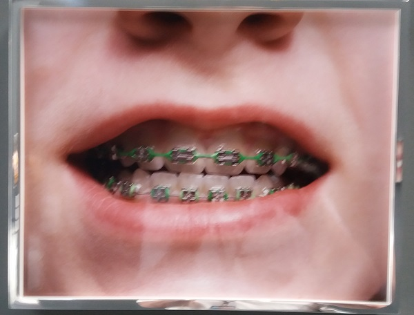 Phil Degginger, Girl with braces, 2016, exposition de Elad Lassry